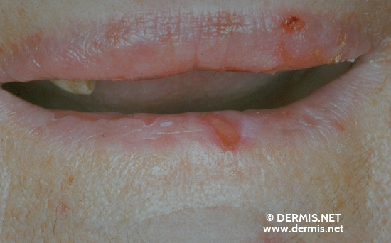 localisation: lips (skin) diagnosis: Pemphigus Vulgaris