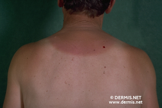 localisation: back of neck diagnosis: Dermatitis Solaris Cutis Rhomboidalis Nuchae