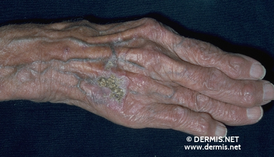 localisation: back of the hands diagnosis: Actinic Keratosis