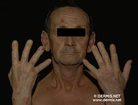 localisation: face hands diagnosis: Porphyria Cutanea Tarda