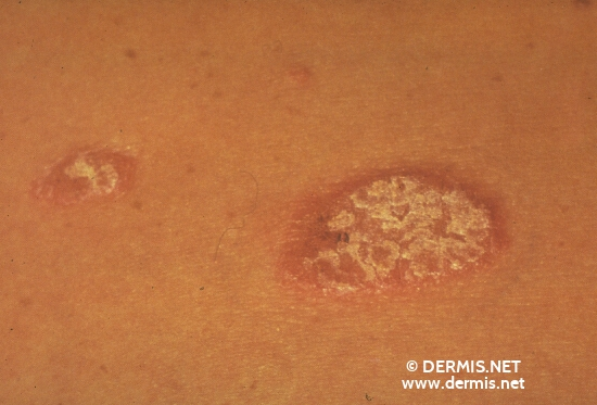diagnosis: Psoriasis Vulgaris, Guttate Type