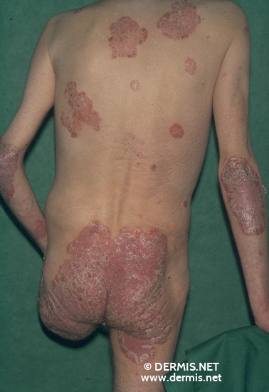 localisation: back sacral region elbow diagnosis: Psoriasis Vulgaris, Chronic Stationary Type