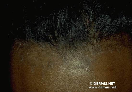 localisation: hair line diagnosis: Psoriasis Vulgaris, Chronic Stationary Type