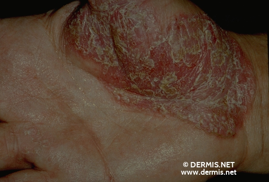 diagnosis: Psoriasis Palmoplantaris