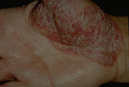 Dyshidrosis lamellosa sicca - huidziekten.nl