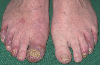 localisation: toe, diagnosis: Acrodermatitis Continua Suppurativa Hallopeau