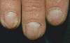 Lokalisation: Fingernagel, Diagnose: Nagelpsoriasis