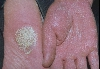 localisation: palms, sole, diagnosis: Psoriasis Inversa