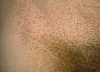 localisation: inguinal region, diagnosis: Pityriasis Rubra Pilaris Devergie