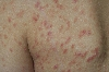 localisation: shoulder region, diagnosis: Pityriasis Lichenoides Chronica
