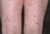 localisation: upper leg, diagnosis: Pityriasis Lichenoides Chronica