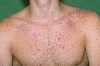 localisation: shoulder region, diagnosis: Psoriasis Vulgaris, Guttate Type