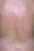 localisation: back, diagnosis: Psoriasis Vulgaris, Guttate Type