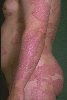 localisation: trunk, arms, diagnosis: Psoriasis Vulgaris, Chronic Stationary Type