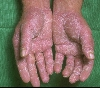 localisation: palms, diagnosis: Allergic Hand Eczema, Allergic Contact Dermatitis, Acute & Chronic