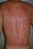 localisation: back, diagnosis: Phytophotodermatitis