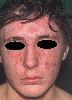 localisation: naso-labial fold, forehead, cheek, diagnosis: Seborrheic Dermatitis