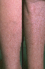 localisation: lower leg, diagnosis: Asteatotic Eczema