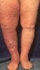 Lokalisation: Beine, Diagnose: Ulcus cruris postthromboticum