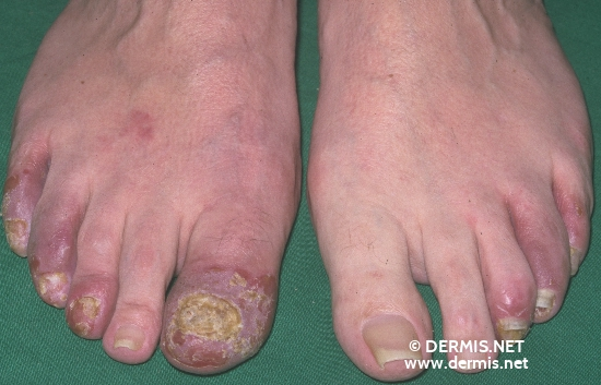 localisation: toe diagnosis: Acrodermatitis Continua Suppurativa Hallopeau