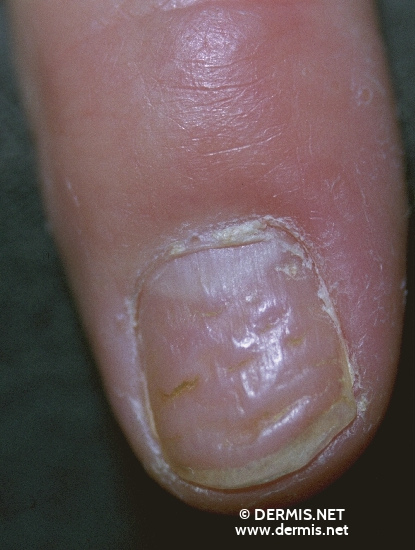 localisation: Fingernagel Diagnose: Nagelpsoriasis