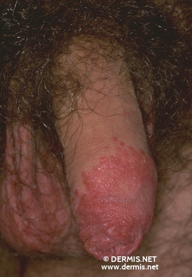 localisation: foreskin corpus of the penis diagnosis: Psoriasis Vulgaris, Guttate Type