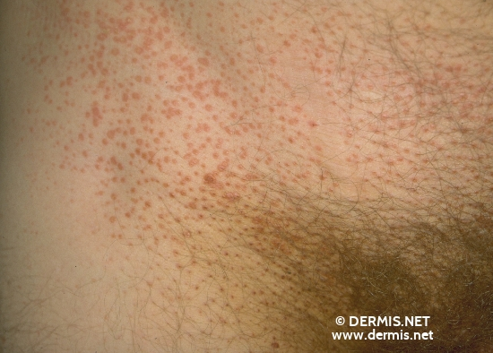 localisation: inguinal region diagnosis: Pityriasis Rubra Pilaris Devergie