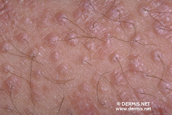 diagnostic: Pityriasis Rubra Pilaris Devergie