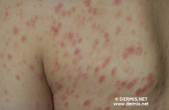 localisation: Schulterregion Diagnose: Pityriasis lichenoides chronica