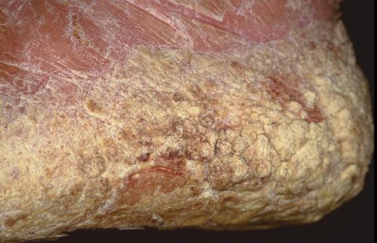 keratosis lichenoides chronica #11