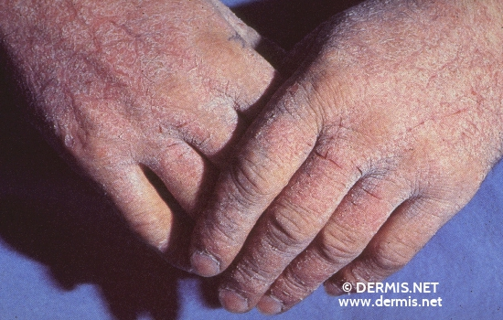 localisation: back of the hands diagnosis: Allergic Hand Eczema Allergic Contact Dermatitis, Acute & Chronic
