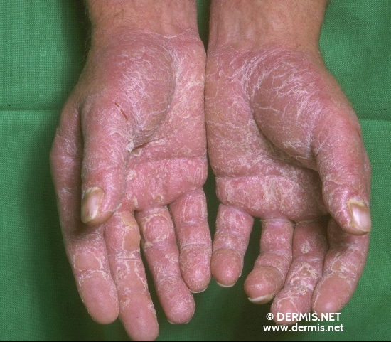 localisation: palms diagnosis: Allergic Hand Eczema Allergic Contact Dermatitis, Acute & Chronic