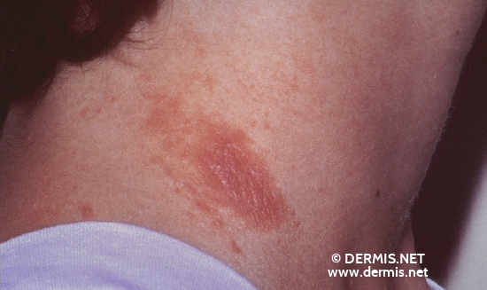 localisation: neck diagnosis: Allergic Contact Dermatitis, Acute & Chronic
