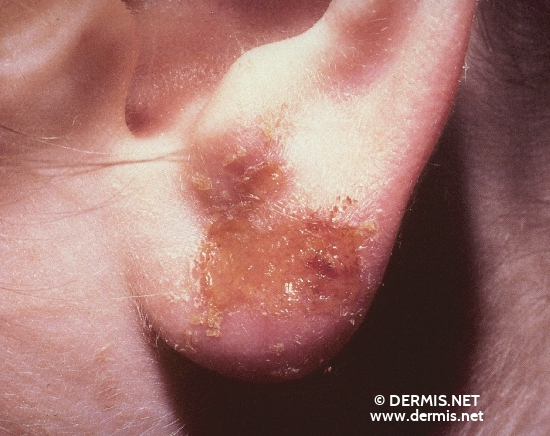 localisation: lobule of auricle diagnosis: Allergic Contact Dermatitis, Acute & Chronic