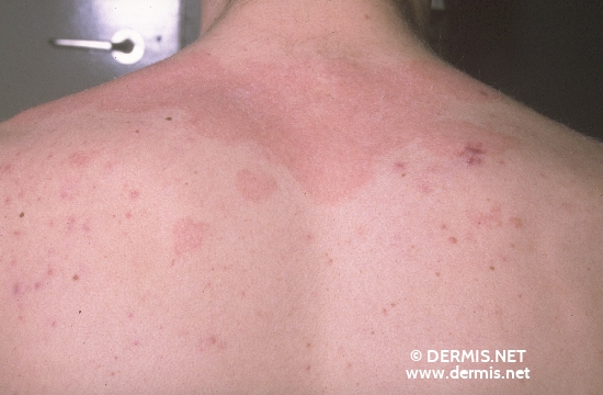 localisation: upper back diagnosis: Seborrheic Dermatitis