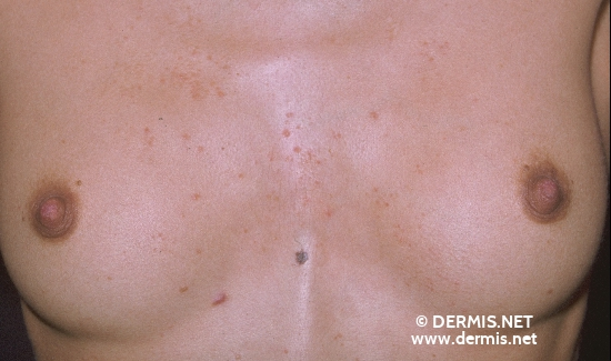 localisation: chest diagnosis: Seborrheic Dermatitis