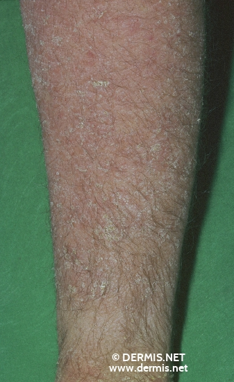 localisation: lower arms diagnosis: Asteatotic Eczema