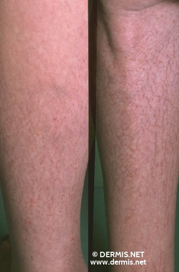 localisation: lower leg diagnosis: Asteatotic Eczema