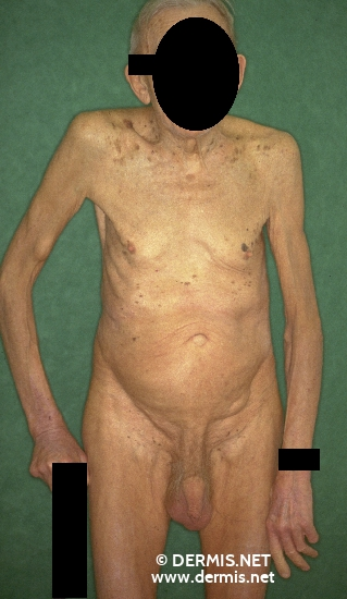 localisation: upper arms diagnosis: Lipoma Seborrheic Keratosis
