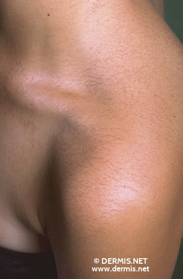 localisation: shoulder region diagnosis: Asteatotic Eczema