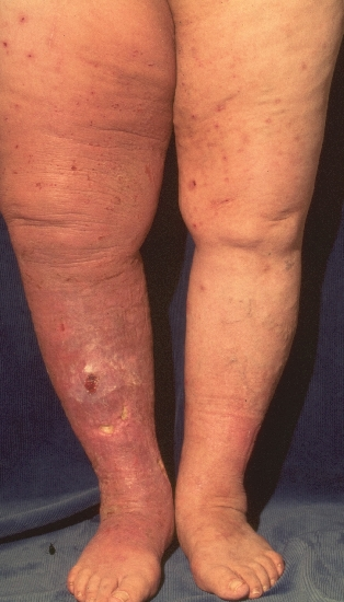 localisation: legs diagnosis: Stasis Dermatitis Postthrombotic Leg Ulcer