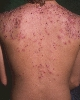 localisation: upper back, diagnosis: Acne Conglobata