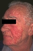 Lokalisation: Gesicht, Diagnose: Rosacea lupoides