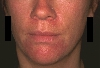 localisation: peri-oral, chin, naso-labial fold, diagnosis: Perioral Dermatitis