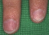 localisation: Fingernagel, Diagnose: Nagelpsoriasis