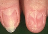localisation: fingernail, diagnosis: Onychodystrophia Mediana Canaliformis