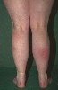 localisation: lower leg, diagnosis: Erythema Nodosum