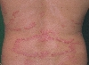 localisation: back, diagnosis: Psoriasis Vulgaris, Chronic Stationary Type, Leukoderma