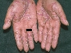 localisation: palms, diagnosis: Psoriasis Inversa