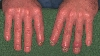 localisation: digital distal interphalangeal joint, fingernail, diagnosis: Psoriasis Arthropathica